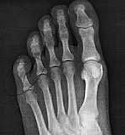 online image of all five toes of left foot in X ray
